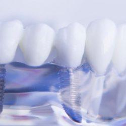 tooth screw integros
